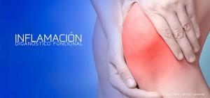 Inflamacion-Diagnostico-Funcional