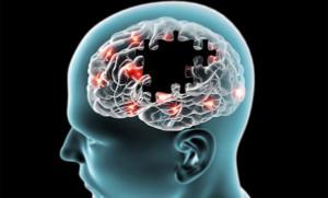 ALTERACIONES-NEUROLÓGICAS
