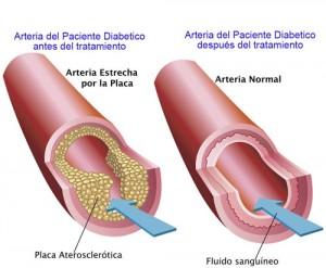 01arteria-sana-enferma